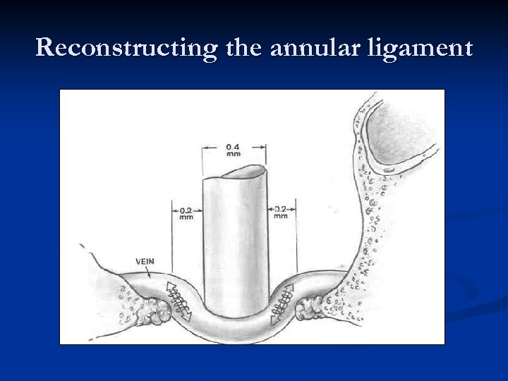Reconstructing the annular ligament