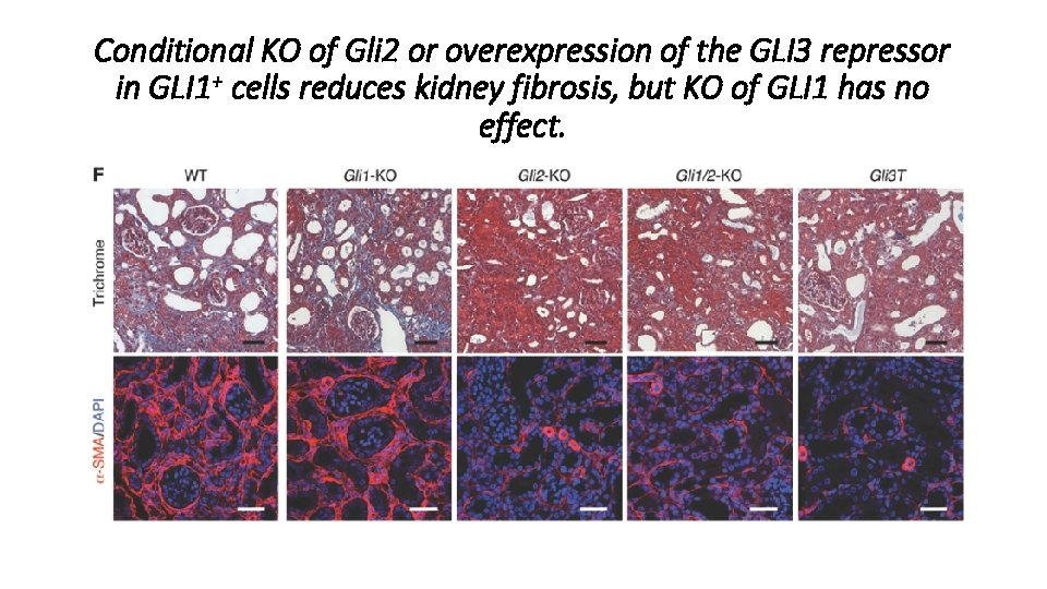 Conditional KO of Gli 2 or overexpression of the GLI 3 repressor in GLI