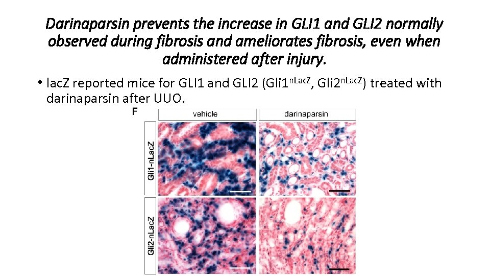 Darinaparsin prevents the increase in GLI 1 and GLI 2 normally observed during fibrosis