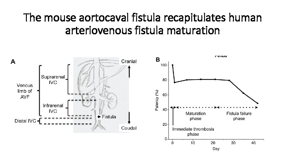 The mouse aortocaval fistula recapitulates human arteriovenous fistula maturation