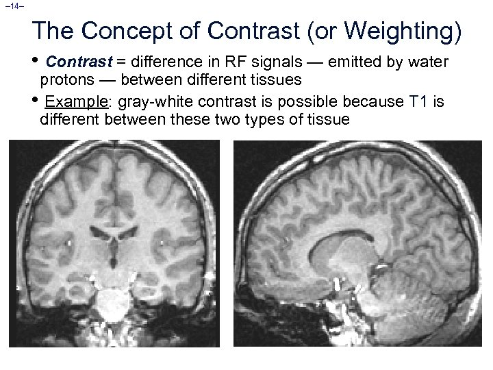 – 14– The Concept of Contrast (or Weighting) • Contrast = difference in RF