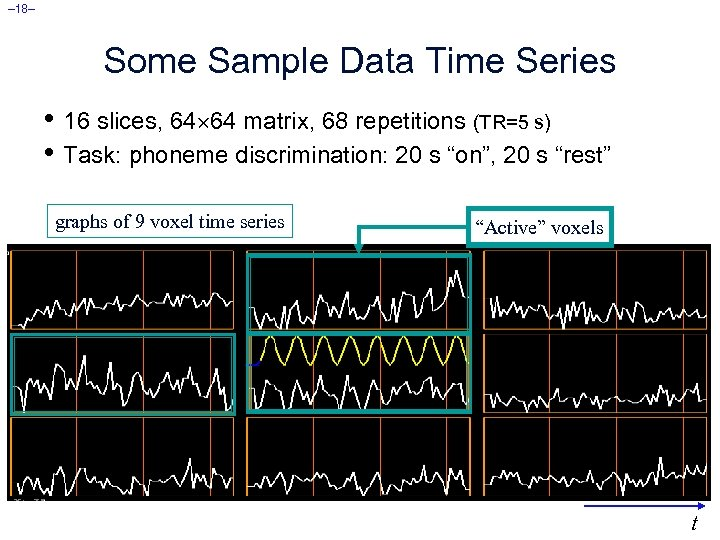 – 18– Some Sample Data Time Series • 16 slices, 64 64 matrix, 68