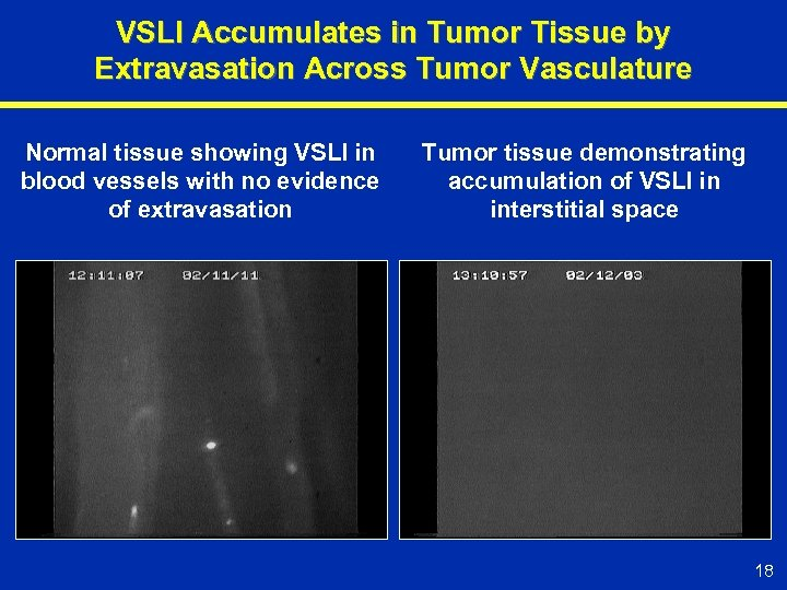 VSLI Accumulates in Tumor Tissue by Extravasation Across Tumor Vasculature Normal tissue showing VSLI