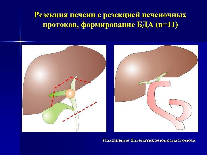 Резекция печени с резекцией печеночных протоков, формирование БДА (n=11) Наложение бигепатикоеюноанастомоза