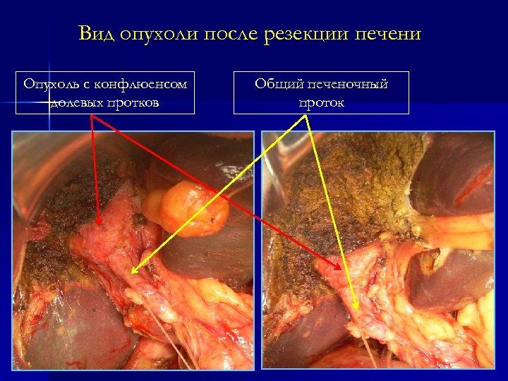 Вид опухоли после резекции печени Опухоль с конфлюенсом долевых протков Общий печеночный проток