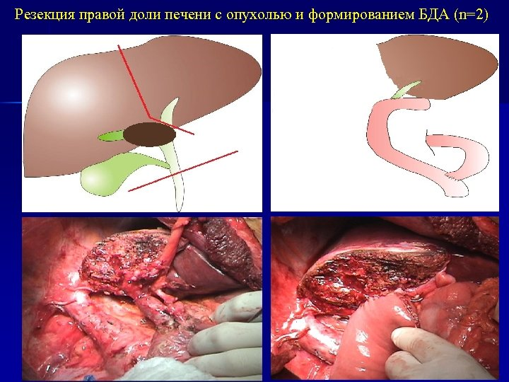 Резекция правой доли печени с опухолью и формированием БДА (n=2)
