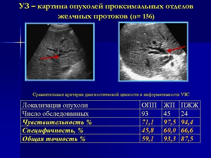 УЗ – картина опухолей проксимальных отделов желчных протоков (n= 156) Сравнительные критерии диагностической ценности