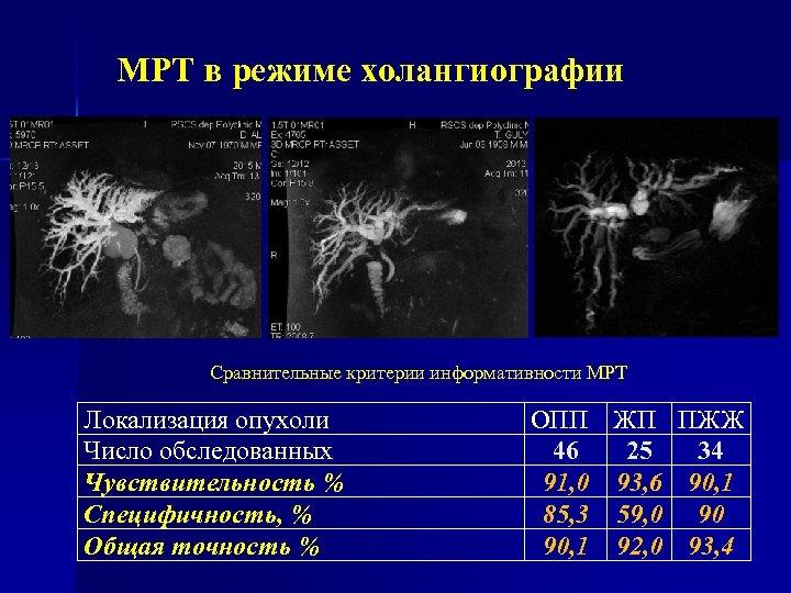 МРТ в режиме холангиографии Сравнительные критерии информативности МРТ Локализация опухоли Число обследованных Чувствительность %