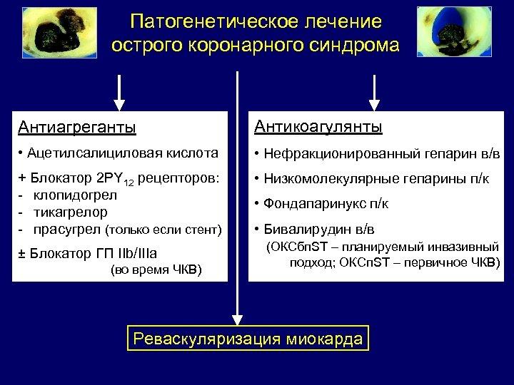 Патогенетическое лечение острого коронарного синдрома Антиагреганты Антикоагулянты • Ацетилсалициловая кислота • Нефракционированный гепарин в/в