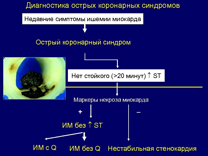 Диагностика острых коронарных синдромов Недавние симптомы ишемии миокарда Острый коронарный синдром Нет стойкого (>20