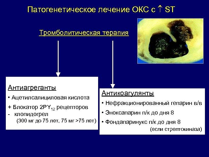 Патогенетическое лечение ОКС с ST Тромболитическая терапия Антиагреганты • Ацетилсалициловая кислота + Блокатор 2