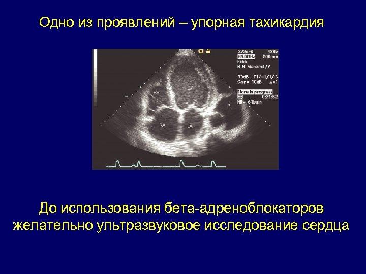 Одно из проявлений – упорная тахикардия До использования бета-адреноблокаторов желательно ультразвуковое исследование сердца