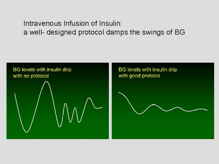 Intravenous Infusion of Insulin: a well- designed protocol damps the swings of BG