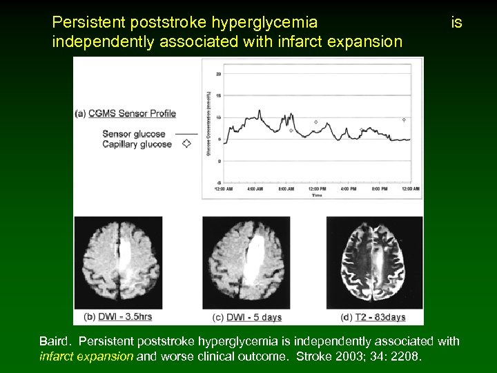Persistent poststroke hyperglycemia is independently associated with infarct expansion Baird. Persistent poststroke hyperglycemia is