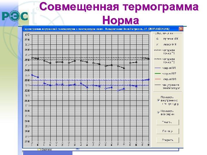 Совмещенная термограмма Норма
