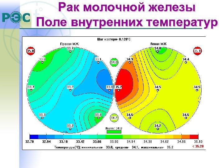 Рак молочной железы Поле внутренних температур