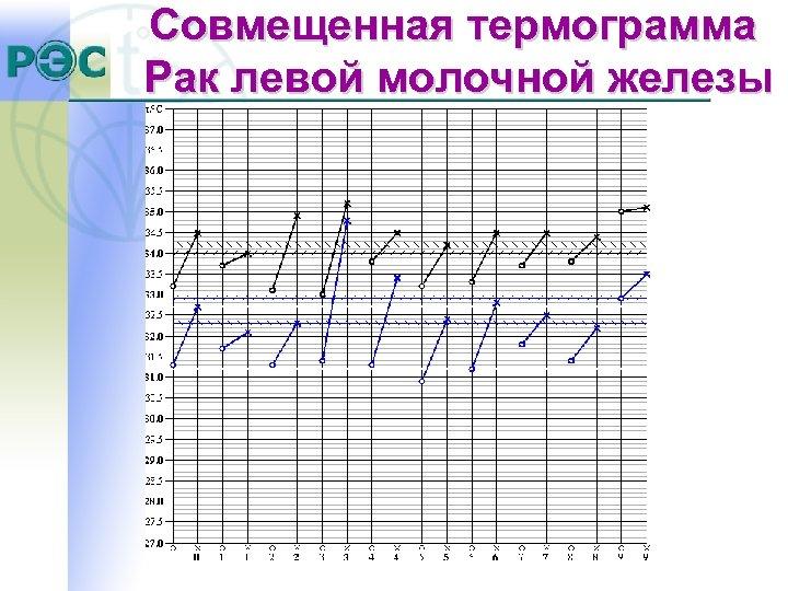 Совмещенная термограмма Рак левой молочной железы