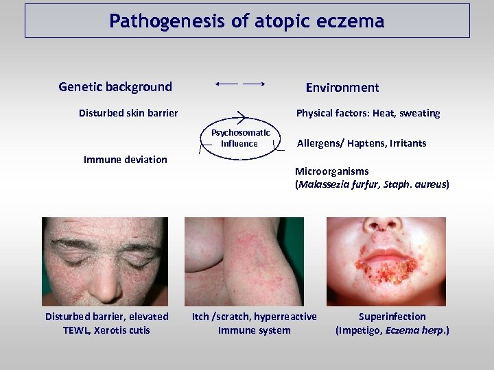 Pathogenesis of atopic eczema Genetic background Environment Disturbed skin barrier Physical factors: Heat, sweating