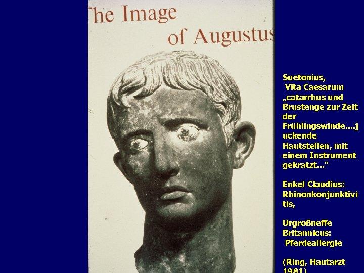 """Suetonius, Vita Caesarum """"catarrhus und Brustenge zur Zeit der Frühlingswinde. . j uckende Hautstellen,"""