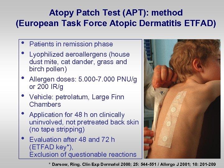 Atopy Patch Test (APT): method (European Task Force Atopic Dermatitis ETFAD) • • •