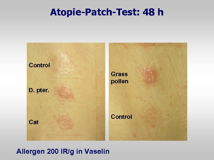 Atopie-Patch-Test: 48 h Control Grass pollen D. pter. Cat Allergen 200 IR/g in Vaselin
