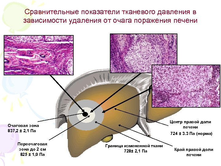 Сравнительные показатели тканевого давления в зависимости удаления от очага поражения печени Центр правой доли