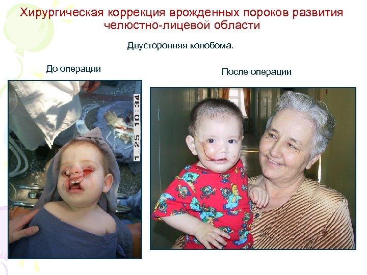 Хирургическая коррекция врожденных пороков развития челюстно-лицевой области Двусторонняя колобома. До операции После операции