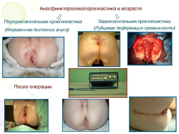 Аносфинктеролеваторопластика в возрасте Переднесагитальная проктопластика (Ятрогенная дистопия ануса) После операции Заднесагитальная проктопластика (Рубцовая деформация