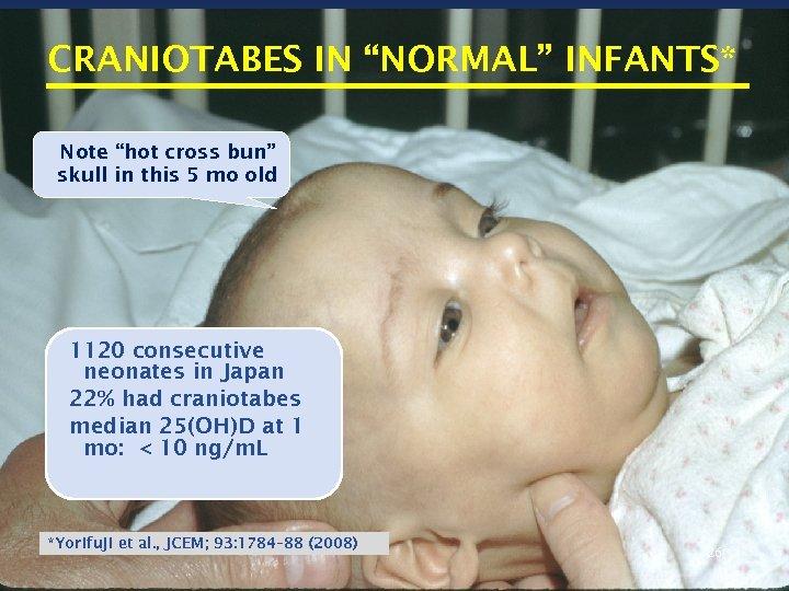 "CRANIOTABES IN ""NORMAL"" INFANTS* Note ""hot cross bun"" skull in this 5 mo old"