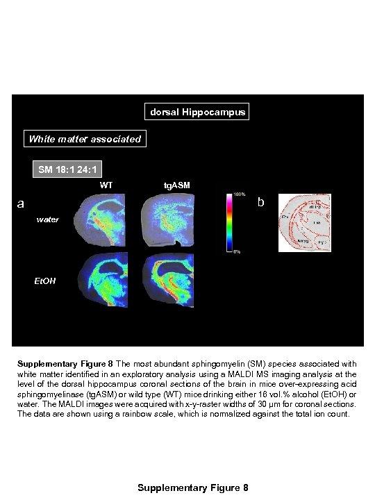 dorsal Hippocampus White matter associated SM 18: 1 24: 1 WT tg. ASM b