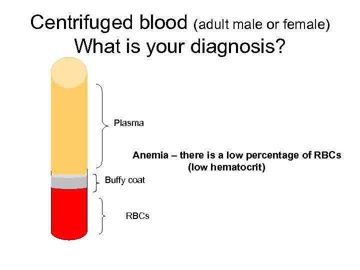 Centrifuged blood (adult male or female) What is your diagnosis? Plasma Anemia – there