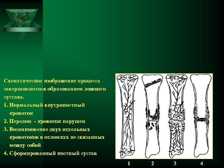 Схематическое изображение процесса завершившегося образованием ложного сустава. 1. Нормальный внутрикостный кровоток 2. Перелом -