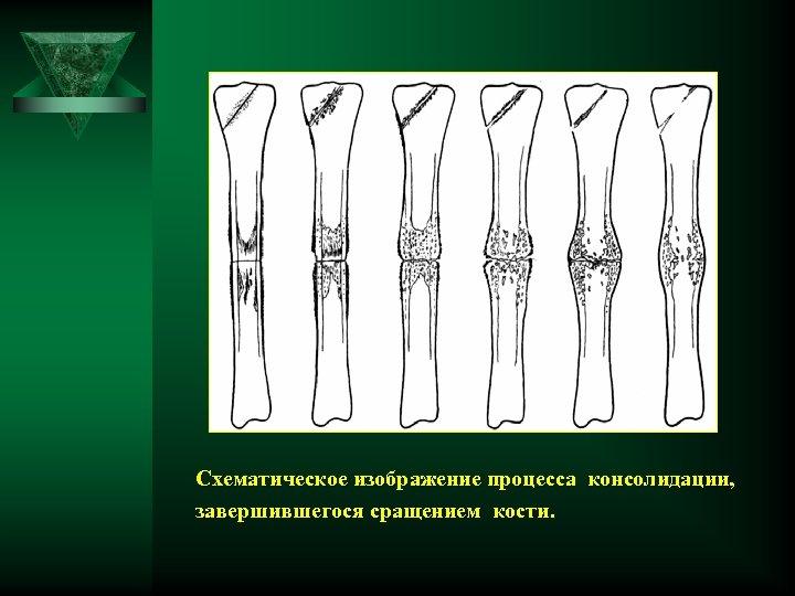 Схематическое изображение процесса консолидации, завершившегося сращением кости.