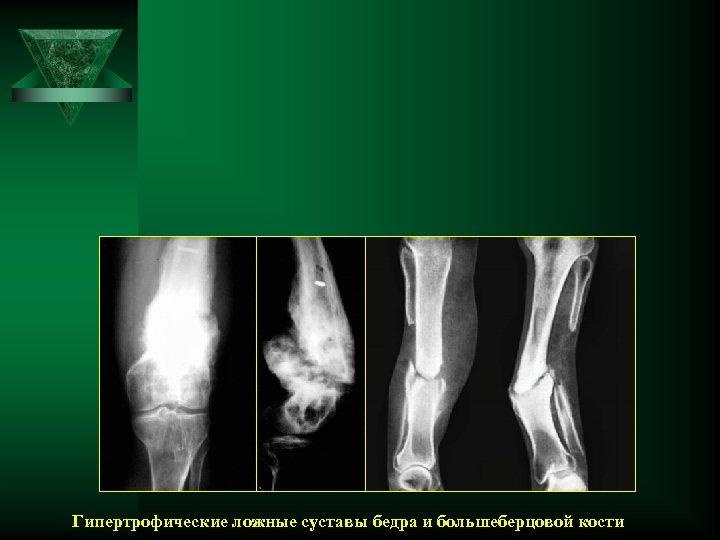 Гипертрофические ложные суставы бедра и большеберцовой кости