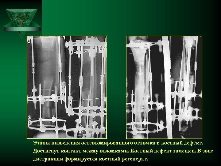 Этапы низведения остеотомированного отломка в костный дефект. Достигнут контакт между отломками. Костный дефект замещен.