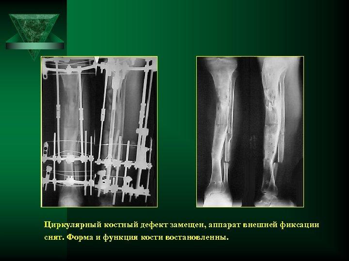 Циркулярный костный дефект замещен, аппарат внешней фиксации снят. Форма и функция кости востановленны.
