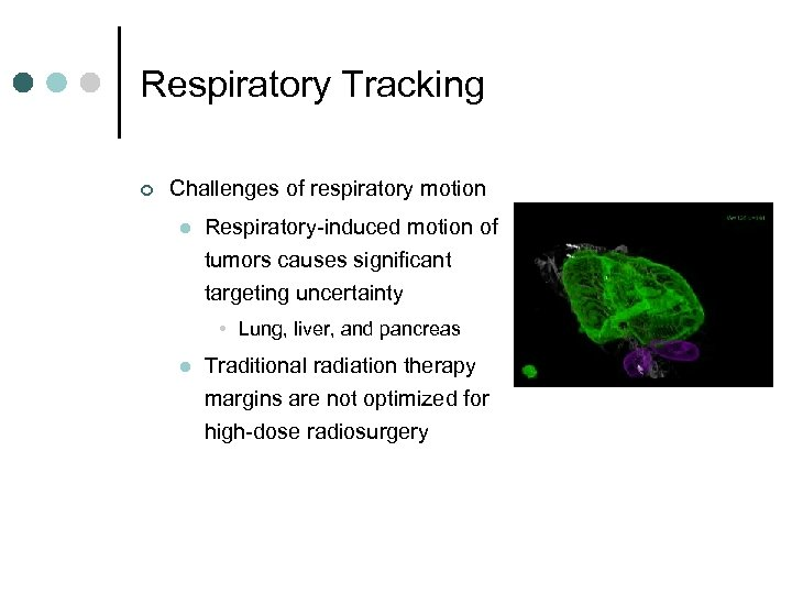Respiratory Tracking ¢ Challenges of respiratory motion l Respiratory-induced motion of tumors causes significant