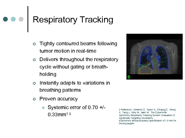 Respiratory Tracking ¢ Tightly contoured beams following tumor motion in real-time ¢ Delivers throughout