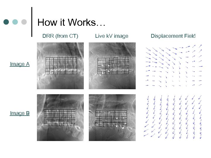 How it Works… DRR (from CT) Image A Image B Live k. V image