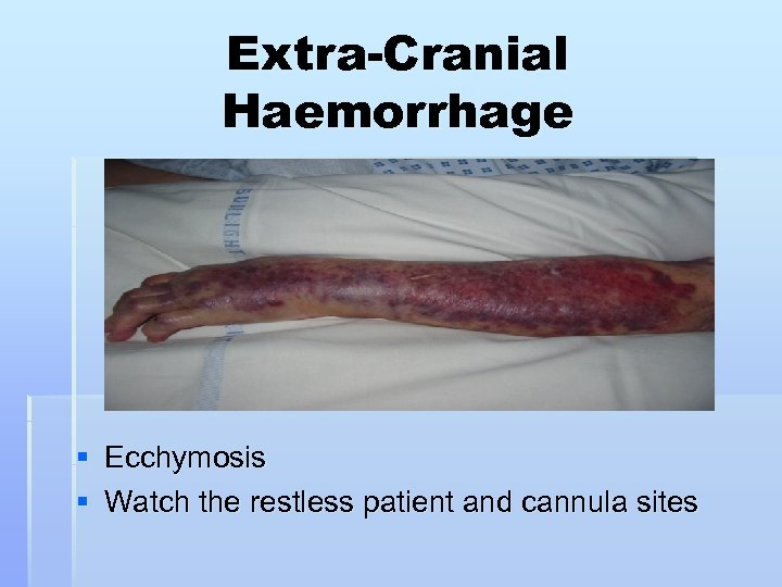 Extra-Cranial Haemorrhage § Ecchymosis § Watch the restless patient and cannula sites