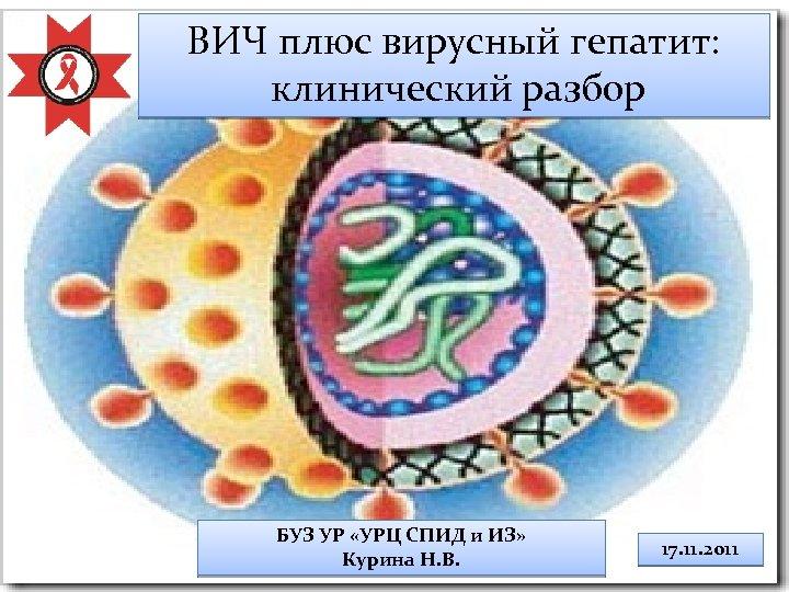 ВИЧ плюс вирусный гепатит: клинический разбор БУЗ УР «УРЦ СПИД и ИЗ» Курина Н.