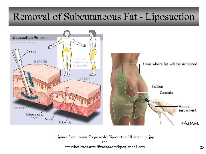 Removal of Subcutaneous Fat - Liposuction Figures from: www. fda. gov/cdrh/liposuction/illustration 2. jpg and