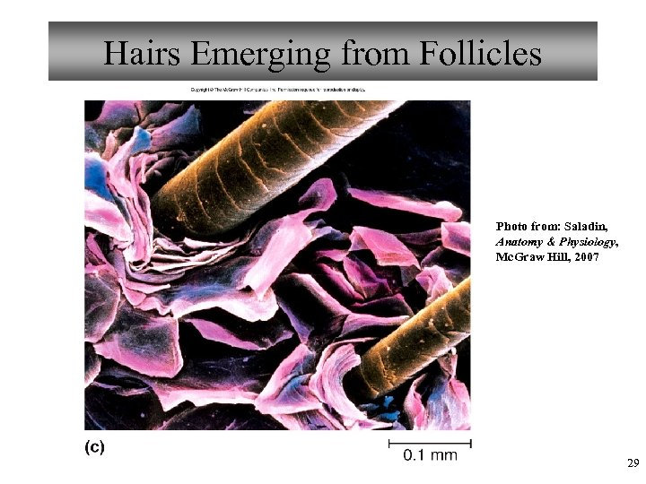 Hairs Emerging from Follicles Photo from: Saladin, Anatomy & Physiology, Mc. Graw Hill, 2007
