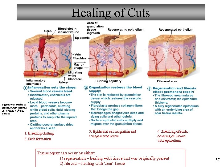 Healing of Cuts Figure From: Marieb & Hoehn, Human Anatomy & Physiology, 9 th