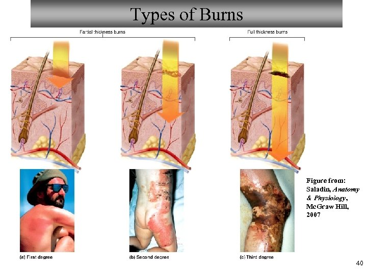 Types of Burns Figure from: Saladin, Anatomy & Physiology, Mc. Graw Hill, 2007 40