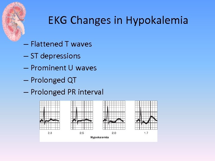 EKG Changes in Hypokalemia – Flattened T waves – ST depressions – Prominent U