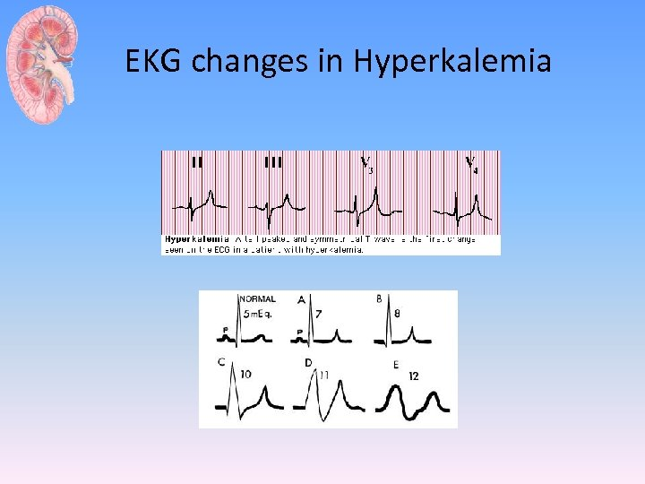 EKG changes in Hyperkalemia