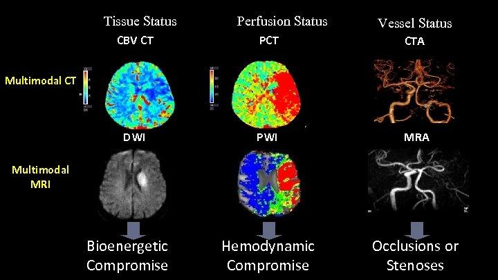 Tissue Status Perfusion Status Vessel Status CBV CT PCT CTA DWI PWI MRA Hemodynamic