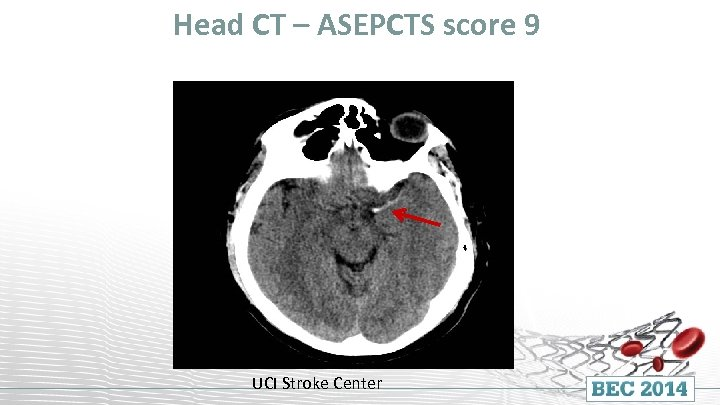 Head CT – ASEPCTS score 9 UCI Stroke Center