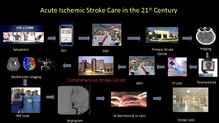 Acute Ischemic Stroke Care in the 21 st Century UCI Stroke Center Symptoms Multimodal